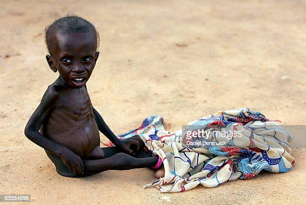Malnourished young boy waits for his mother to bathe him whilst receiving shelter and care at an MSF Medical Clinic on August 6, 2005 in Maradi,...