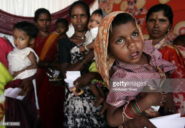 Malnutrition Ramila ashok Malna with his mother and other malnutritioned kids with their mothers waits for their turn to get milk powder supplied by...