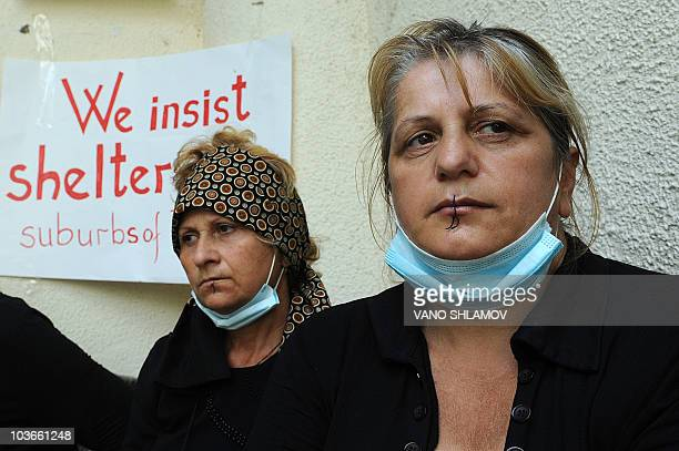 Maluza Abramishvili and Nunu Basaria Georgian refugees from Abkhazia are seen with their lips sewn together during a hunger strike in Tbilisi on...