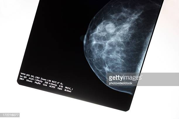 mammogram - mammogram stock pictures, royalty-free photos & images