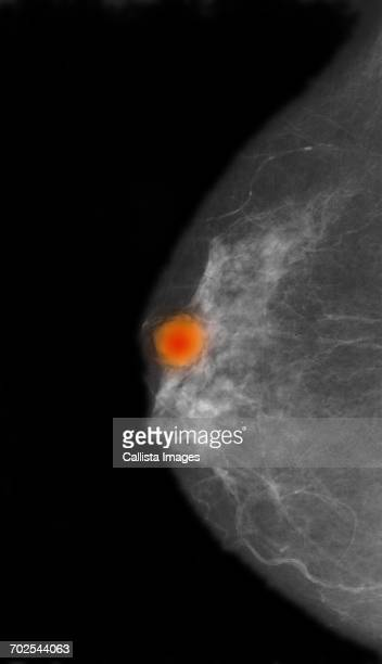Mammogram showing an area diagnosed as colloid carcinoma