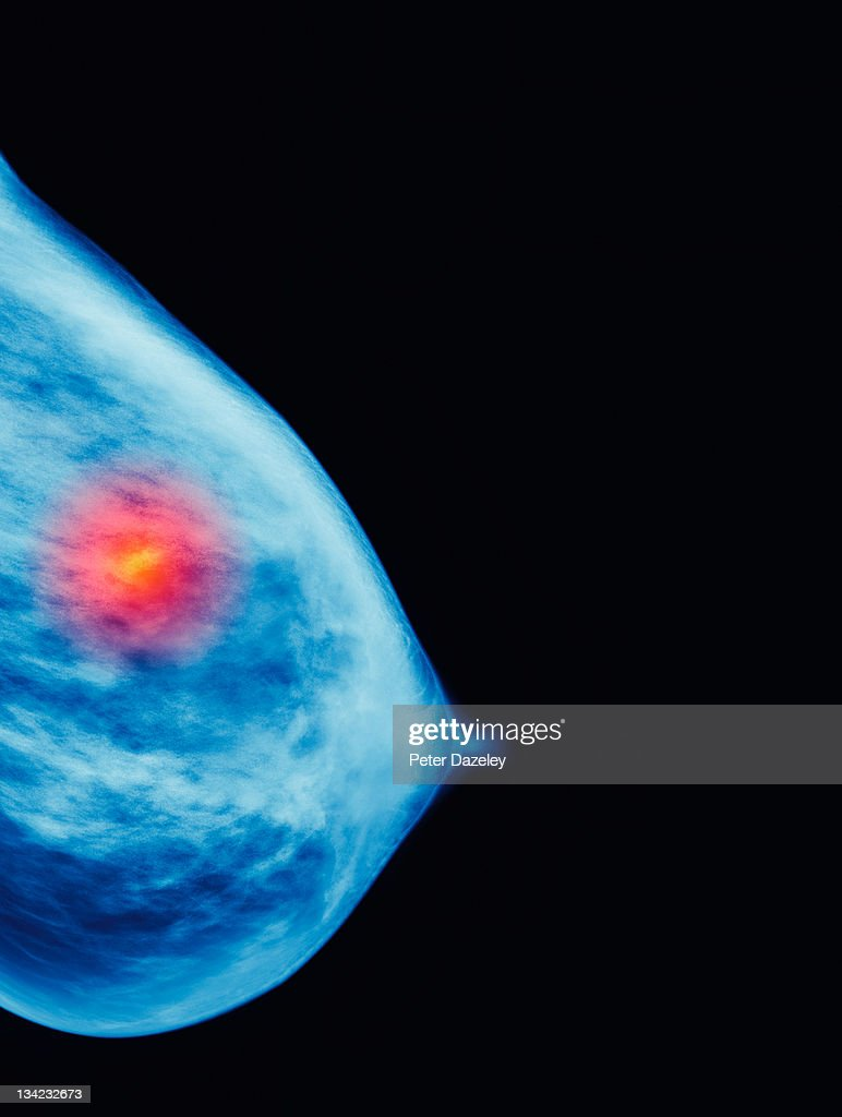 Mammogram showing cancer growth : Stock Photo