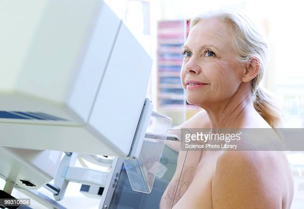 mammography - mammogram stock pictures, royalty-free photos & images