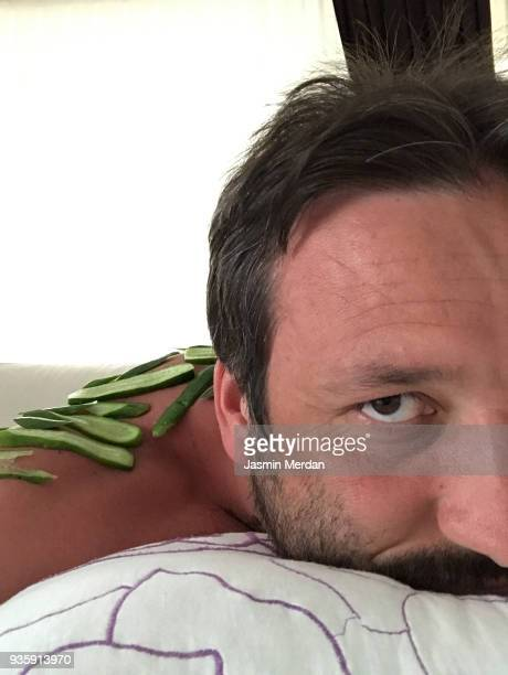 Man after sunburn using cucumber as a therapy massage