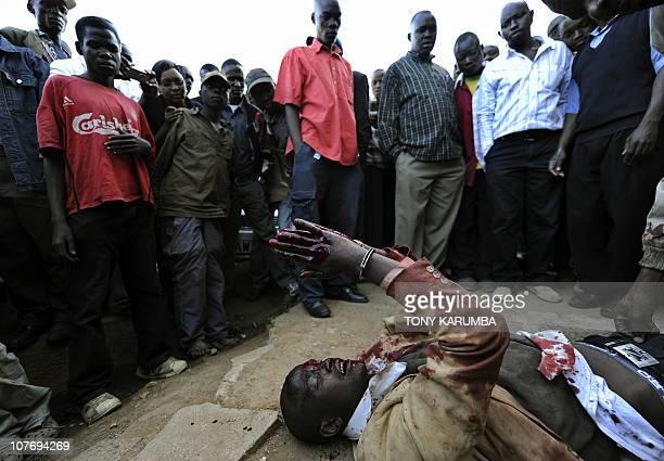 A man bleeding from the head and hands lies on the ground in Eldoret following a skirmish over an undisclosed reason on December 15 2010The...