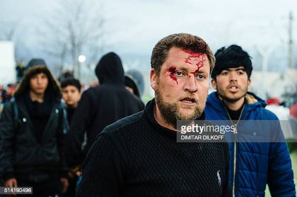 A man bleeds after a fight at a makeshift camp at the GreekMacedonian border near the Greek village of Idomeni on March 7 where thousands of refugees...