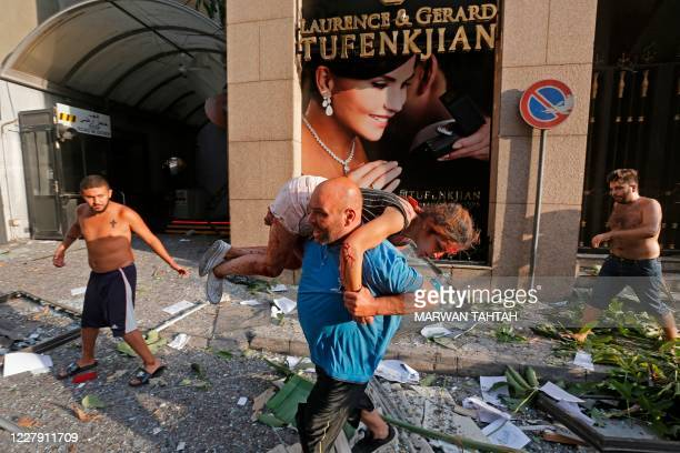 Man carries away an injured girl while walking through debris past in the Achrafiyeh district in the centre of Lebanon's capital Beirut on August 4...