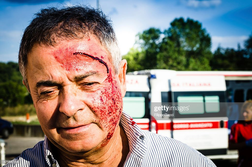 Man face after car accident : Stock Photo