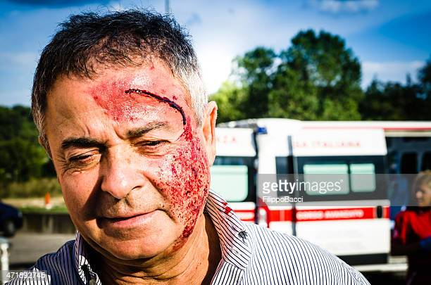 man face after car accident - bloody car accidents stock pictures, royalty-free photos & images