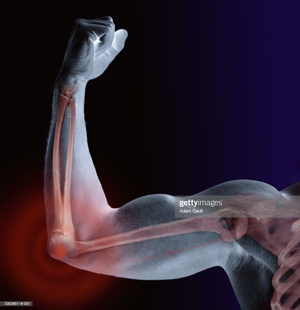 Man flexing bicep, skeleton visible, close-up (Digital Composite) : Stock Photo
