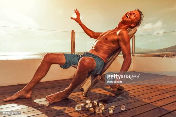 man getting a sun burn - coup de soleil photos et images de collection