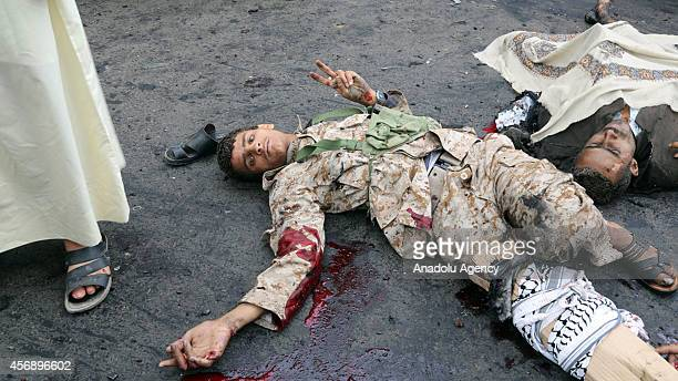 A man gives a victory sign after being injured during a suicide attack which killed and wounded many people including children near an area where...