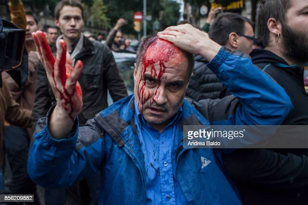 A man got hurt after being hit by a plastic bullet People clash with the Spanish police 'Policia Nacional' after they closed down a polling station...