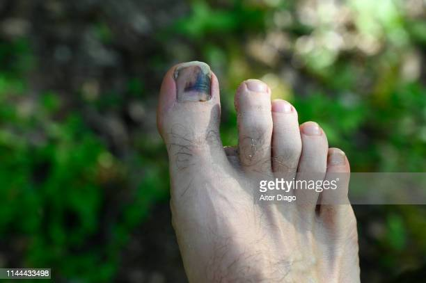 A man has a wound toe because wearing small shoes.  Photo taken outdoors with a green grass background.