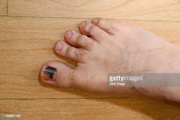 A man has a wound toe because wearing small shoes.