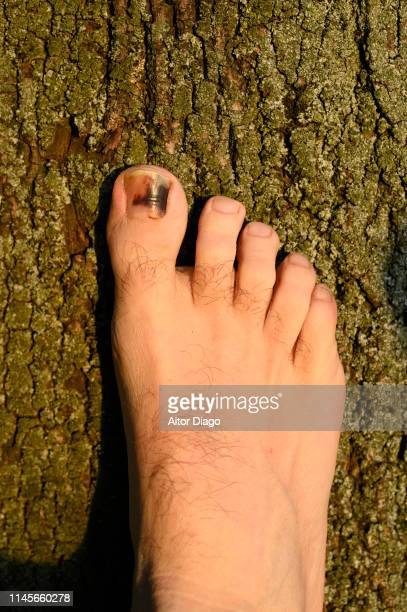 A man has a wound toe because wearing small shoes.  The foot is illuminated by the sunlight of the sunset on the  tree trunk