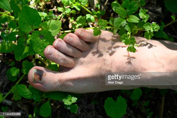 A man has a wound toe because wearing small shoes.   The foot is on a floor with plants and grass.