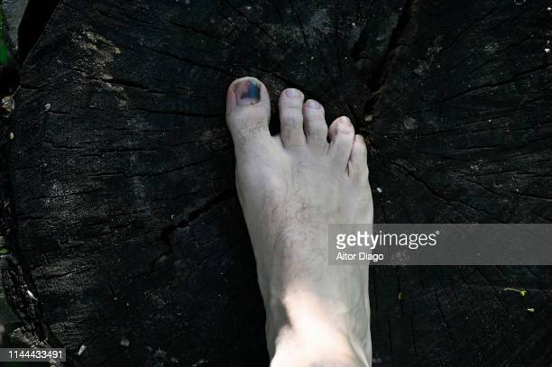 A man has a wound toe because wearing small shoes.  The foot is on the trunk of a cut tree
