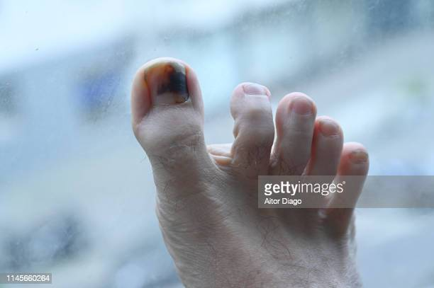 A man has a wound toe.  The foot is close to a glass window.