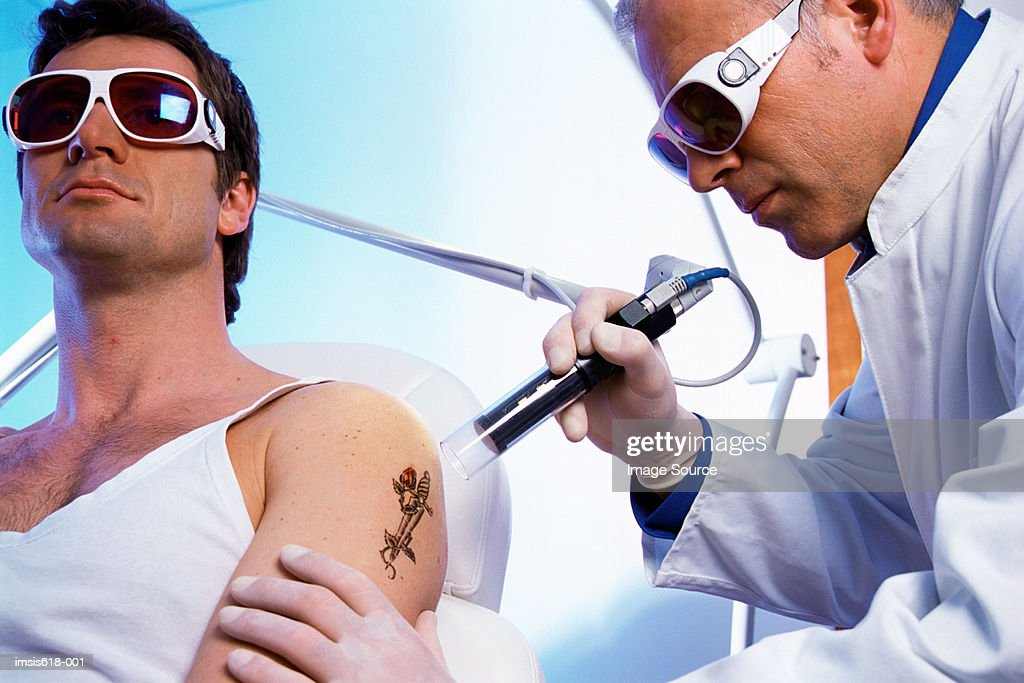 Man having tattoo removed : Stock-Foto