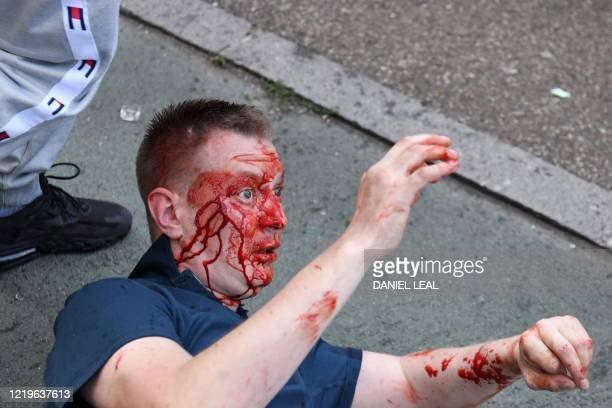 A man his face covered in blood falls to the ground after a fight takes place near Waterloo Station as protesters supporting the Black Lives Matter...
