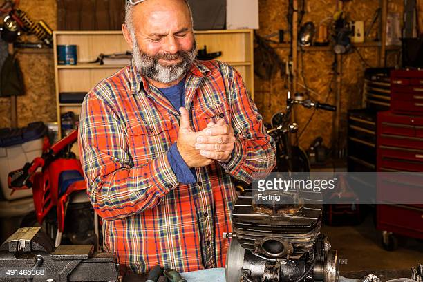Man in a workshop with a hand injury