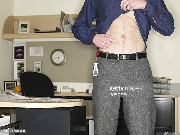 Man in office lifting shirt, pointing at scar on stomach, mid section