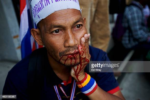 A man injured by an explosion sits on the pavement after an explosive device went off during an antigovernment protest march wounding more than 20...