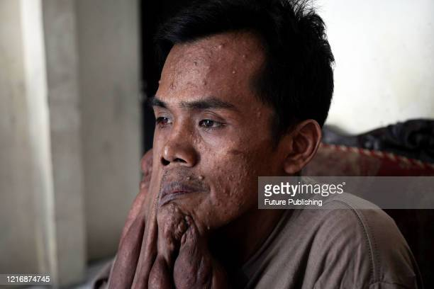 Man is battling through life - despite living with 30 kilograms worth of tumours on his body. 34-year-old Andriadi Putra has been told by doctors...