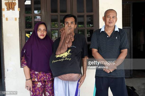 BRAVE man is battling through life despite living with 30 kilograms worth of tumours on his body 34yearold Andriadi Putra has been told by doctors...