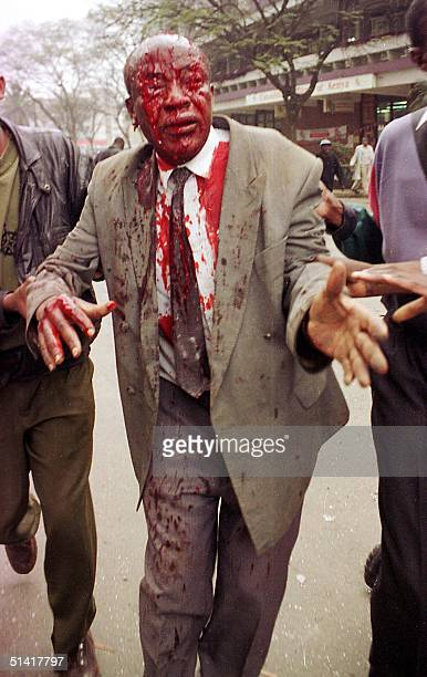 A man is helped away from the site of bomb explosion near the US embassy and a bank in Nairobi 07 August that killed at least 60 people including...