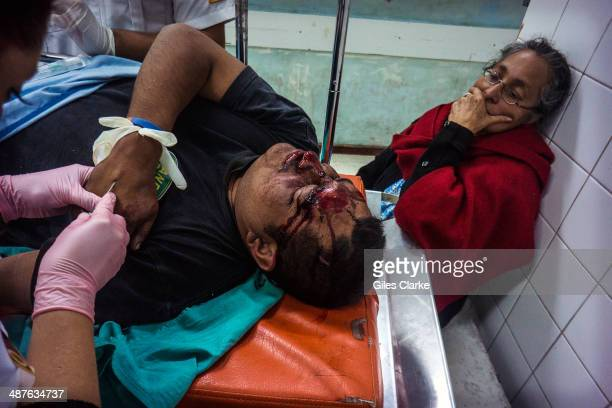 A man lies in pain after being the victim of a motorcycle accident January 22 2014 in Guatemala City Guatemala The bomberos voluntarios are a...