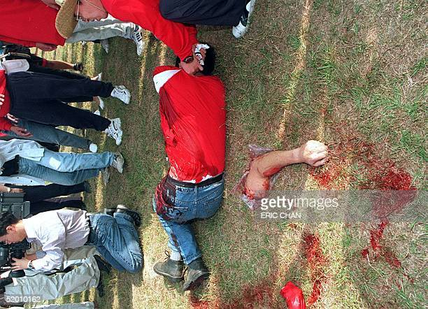 A man lies on the ground with his arm clearly detached from his body after the rope from a game of tugofwar in suburban Taipei unexpectedly broke 25...