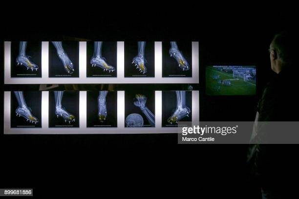 A man looks at the installation of a series of radiographs of the feet of Diego Armando Maradona in the museum of madness