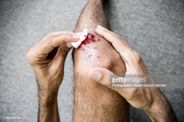 man medical dressing his own bruised / injured /wounded knee - down on one knee stock pictures, royalty-free photos & images