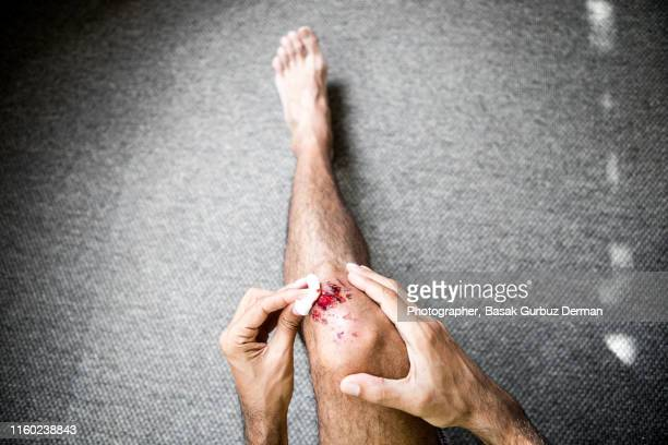 man medical dressing his own bruised / injured /wounded knee - wounded stock pictures, royalty-free photos & images