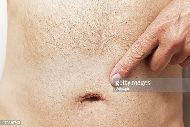 man pointing to belly button scar - liesbreuk stockfoto's en -beelden