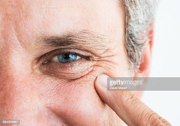 Man pointing to wrinkles around his eye