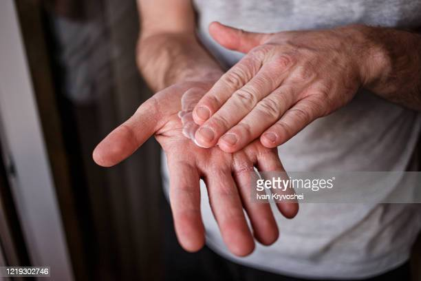 man putting moisturizer onto his hand with very dry skin and deep cracks with cream due to washing alcohol on covid19 situation. horizontal close up of the inside of a very sore dry cracked male hand - dry skin stock pictures, royalty-free photos & images