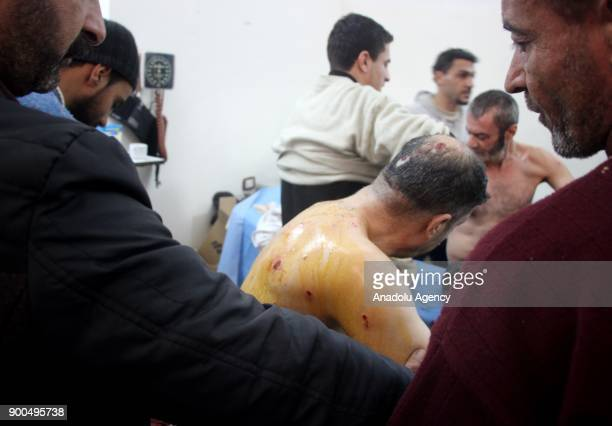 A man receives medical treatment at a military hospital after getting injured by an airstrike carried out by Assad Regime Forces hit a marketplace in...