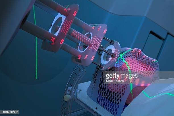 man receiving radiotherapy for cancer treatment - cancercell bildbanksfoton och bilder