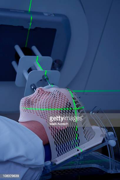 man receiving radiotherapy treatments for cancer - kaposis sarkom bildbanksfoton och bilder