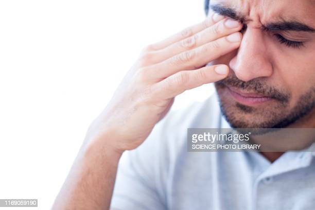 man rubbing his right eye - pain stock pictures, royalty-free photos & images
