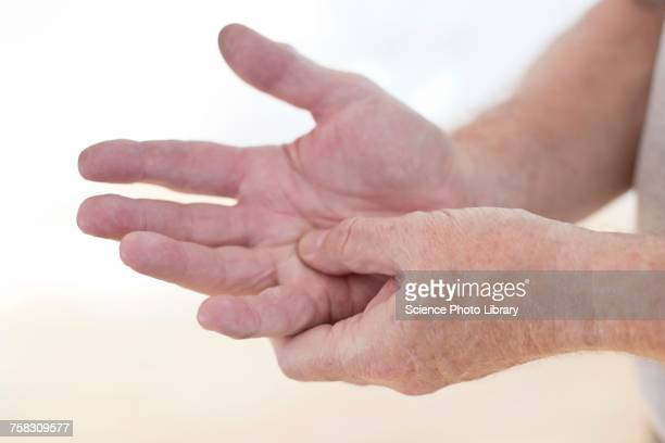 man rubbing sore hand - arthritis stock pictures, royalty-free photos & images