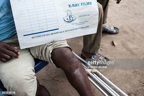 A man shot through the leg during during a proBiafra protest in 2015 poses for a photo in Port Harcourt on May 3 2016 Over the past year Biafran...