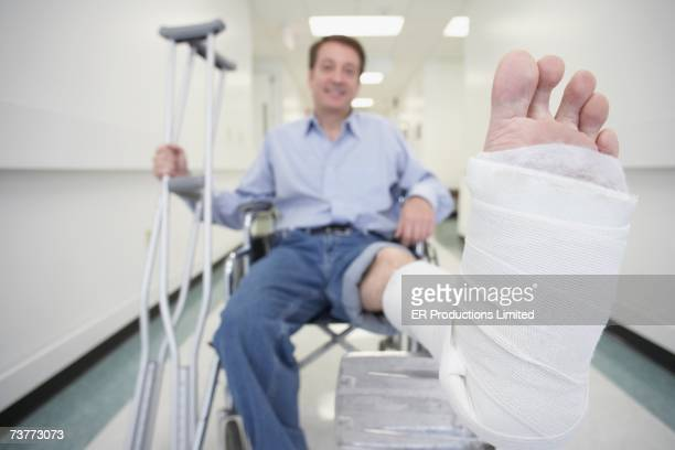 man sitting in wheelchair with broken leg in hospital - pierna fracturada fotografías e imágenes de stock