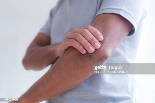 man touching his elbow in pain - arto parte del corpo foto e immagini stock