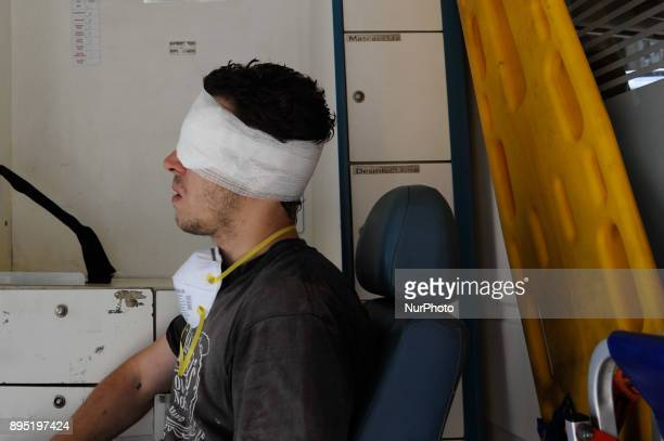 A man was injured in one eye during a protest against the pension reform on December 18 2017 in Buenos Aires Argentina Argentina's lower house...