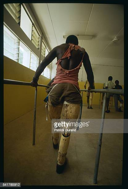 A man wearing artificial legs holds guardrails and exercises walking at Maputo's hospital