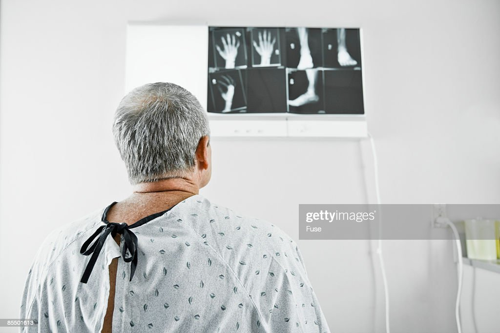 Man Wearing Hospital Gown Looking At Xray Stock Photo | Getty Images